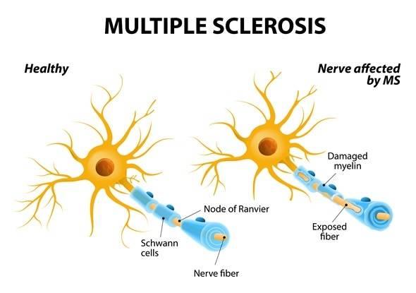 Alabama Clinics - Multiple Sclerosis